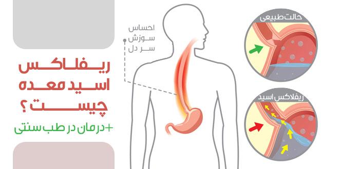 رفلاکس اسید معده چیست ؟ همراه با روش درمانی در طب سنتی - پارسی طب
