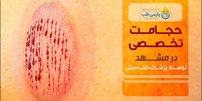 حجامت در مشهد ( انجام حجامت های خاص مطابق با علم و حکمت ) - پارسی طب
