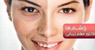 سیاهی دور چشم ، چین و چروک دور چشم + پیشگیری و درمان - پارسی طب
