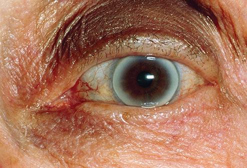 حلقه اطراف چشم - کبد چرب