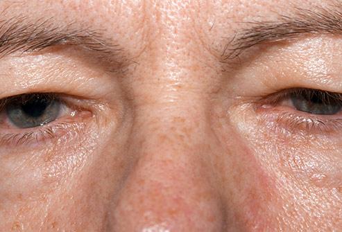 افتادگی پلک تشخیص بیماری از روی چشم