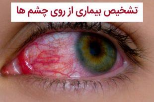 تشخیص بیماری از روی چشم ها