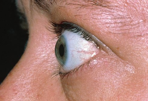 برآمدگی چشم تشخیص بیماری از روی چشم