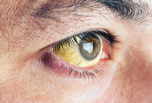 زرد شدن چشم تشخیص بیماری از روی چشم