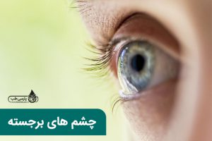 چشم های برجسته
