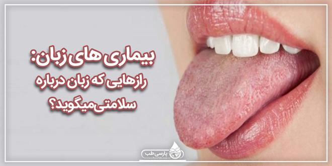 بیماریهای زبان: رازهایی که زبان درباره سلامتی میگوید؟