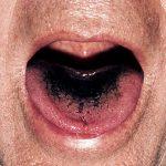 أمراض اللسان-سواد اللسان