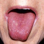 أمراض اللسان-اللسان الأملس