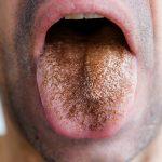 أمراض اللسان-ظهور الشعيرات علی اللسان