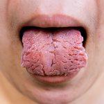 أمراض اللسان-تشقق اللسان