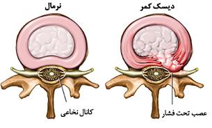 دیسک کمر کانال نخاعی