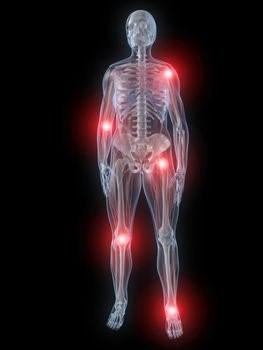 فرط تركيز الدم- آلام العظام