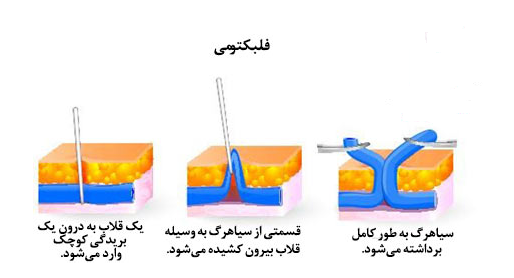 فلبکتومی درمان واریس