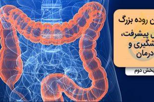 سرطان روده بزرگ؛ مراحل پیشرفت، پیشگیری و درمان