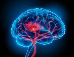 غلظت خون باعث سکته مغزی میشود.