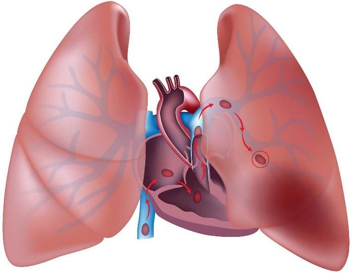غلظت خون باعث انسداد جریان خون در افراد مبتلا به بیماری های ریوی می شود.
