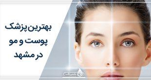 بهترین پزشک پوست و مو در مشهد