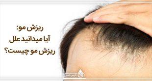 ريزش مو: آیا میدانید علل ریزش مو چیست؟