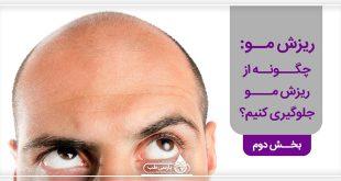 ریزش مو: چگونه از ریزش مو جلوگیری کنیم؟ (بخش دوم)