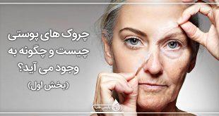 چروک های پوستی چیست و چگونه به وجود می آید؟(1)