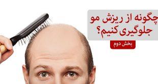 چگونه از ریزش مو جلوگیری کنیم بخش دوم