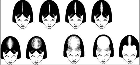 ریزش موی آندروژنیک زنان
