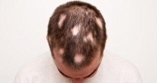 ریزش موی سکه ای آلوپسی