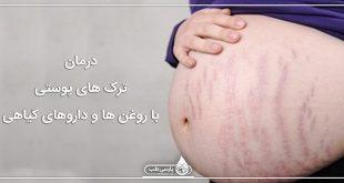 درمان ترک های پوستی با روغن ها و داروهای گیاهی