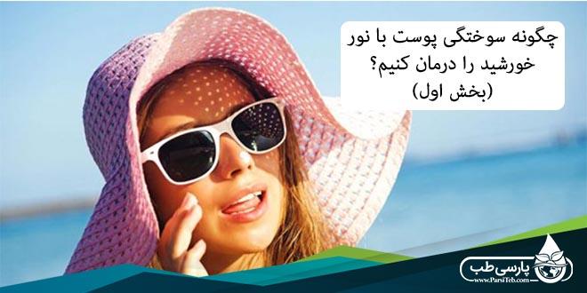 درمان سوختگی آفتاب