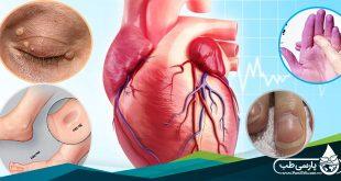 علایم بیماری های قلبی: ۱۲ علامت هشدار دهنده که روی پوست ظاهر می شود (I)