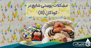 مشکلات پوستی شایع در کودکان (II)