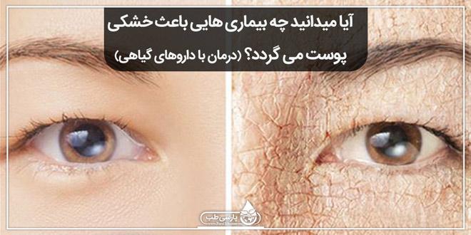 آیا میدانید چه بیماری هایی باعث خشکی پوست می گردد؟ (درمان با داروهای گیاهی)