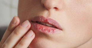 خشکی لب ها چه دلیلی دارد و درمان آن چیست ؟