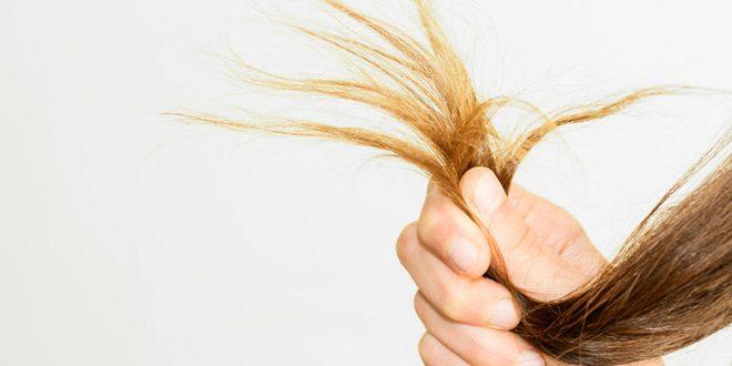 بیماری هایی که باعث آسیب دیدگی موها میشوند