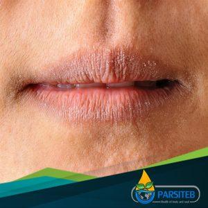 أعراض نقصان فيتامين B6-الجفاف وتشقق الشفتين