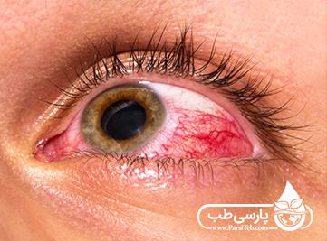 اثرات مضر مواد شوینده برای چشم