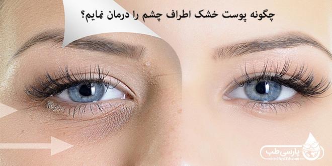 چگونه پوست خشک اطراف چشم را درمان نمایم؟