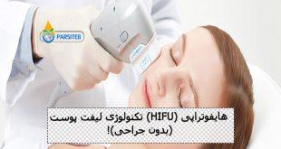 هایفوتراپی (HIFU) تکنولوژی لیفت پوست (بدون جراحی)!