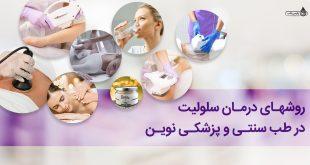 روشهای درمان سلولیت در طب سنتی و پزشکی نوین