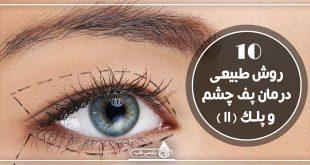 ۱۰ روش طبیعی درمان پف چشم و پلک (II)