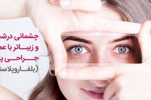 روشهای کاهش افتادگی پلک