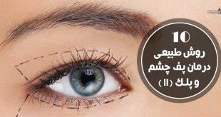 روش های طبیعی درمان پف چشم و پلک