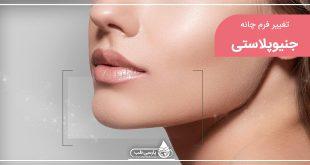 آیا می دانید عمل زیبایی اصلاح چانه (جنیوپلاستی) چیست؟