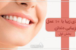 لبخندی زیبا با 10 روش زیبایی دندان (I)