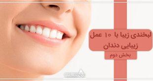 لبخندی زیبا با ۱۰ عمل زیبایی دندان (II)