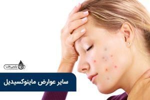 سایر عوارض ماینوکسیدیل