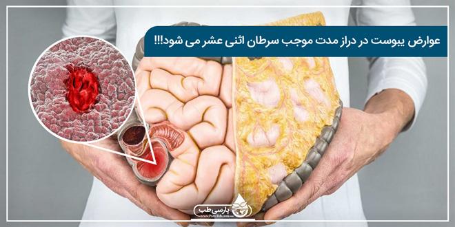 عوارض یبوست در دراز مدت موجب سرطان اثنی عشر میشود