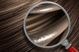 انواع تست ریزش مو (بررسی انفرادی وضعیت سلامت مو بدون نیاز به پزشک)