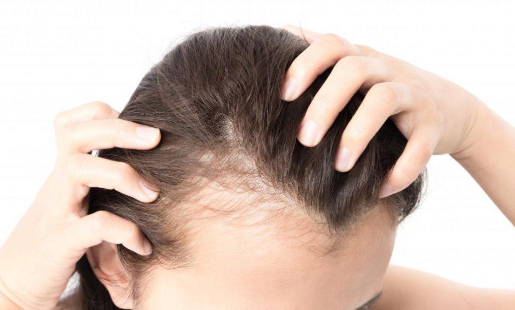 ریزش مو از عوارض کراتینه شیمیایی ست