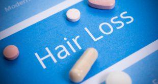 مهمترین داروهایی که باعث ریزش مو می شوند و روش جایگزین کردن آنها